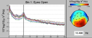 Fig. 2: [Left] Eyes-open resting state EEG spectral power density (SPD) averaged across data from 7 neurotypical individuals (unpublished data). Each line is the SPD at a different electrode. [Right] The topography of the PSD at 10.5 Hz.