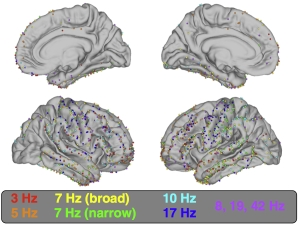 Fig. 8: Locations of all 1208 electrodes on average cortical surface. Electrodes are color coded to indicate cluster membership (see Fig. 6).