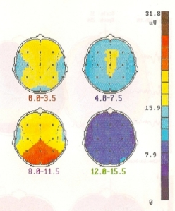 Fig. 4: Topographies of resting EEG spectral amplitude density averaged across 43 individuals in delta [upper left], theta [upper right], alpha [lower left], and beta [lower right] frequency bands (Maurer & Dierks, 1991). It was actually surprisingly hard for me to find a published figure illustrating this.